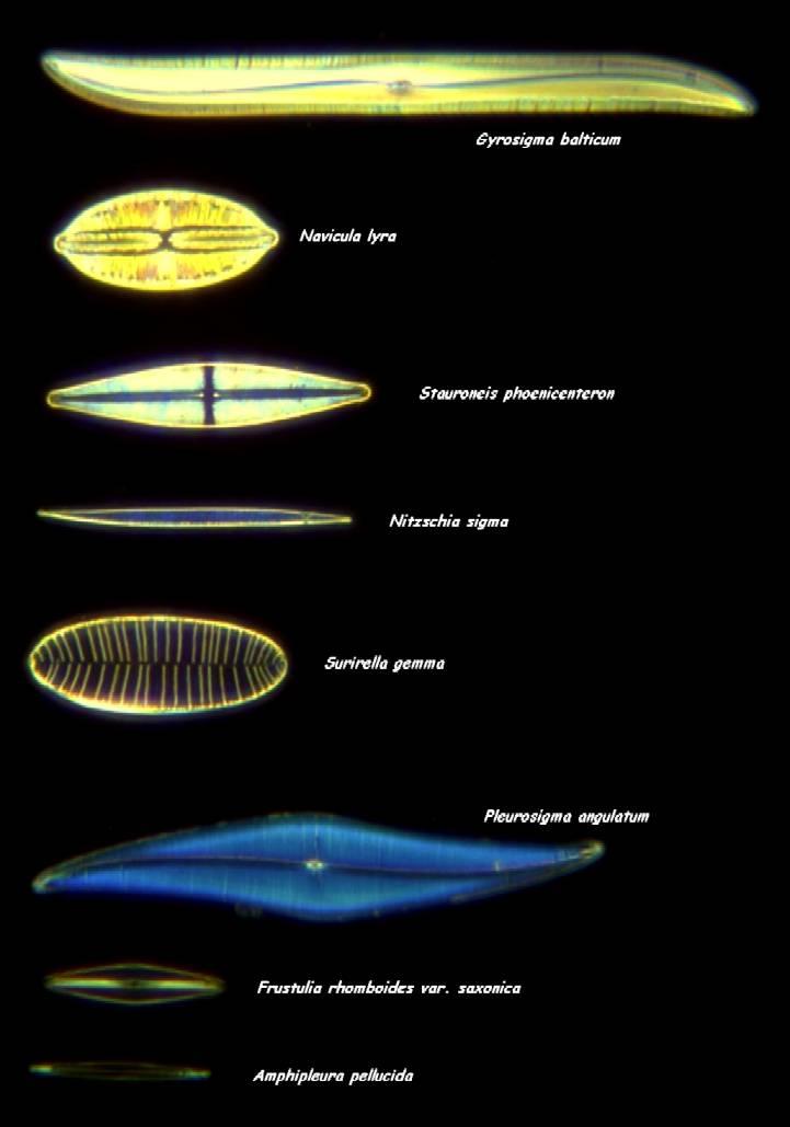 Diatoms Microscope A typical diatom test slide