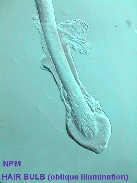 Hair Bulb Under Microscope dog hair under microsc...