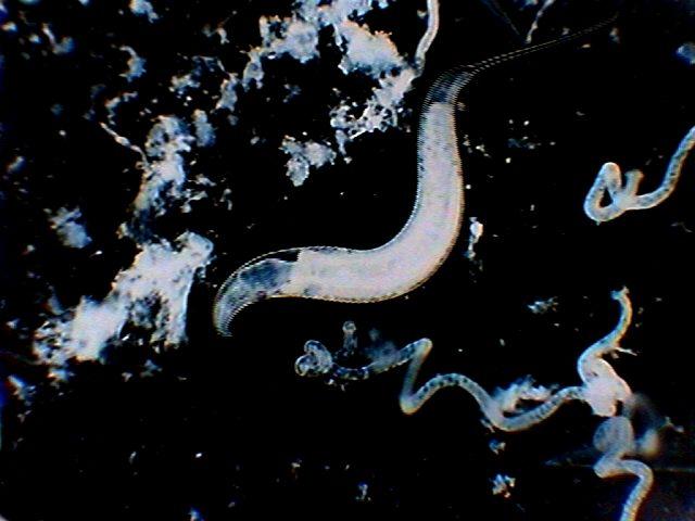 öl von parasiten auf mensch ansteckend.jpg