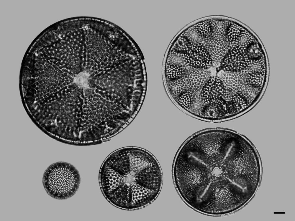 Diatoms Microscope Cretaceous Diatom 1
