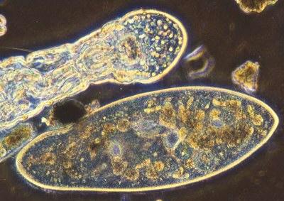 Protozoa portraits - Paramecium, Amoeba, Colpidium