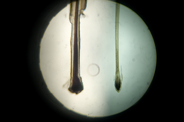 Head Of Hair Under Magnifying Gl