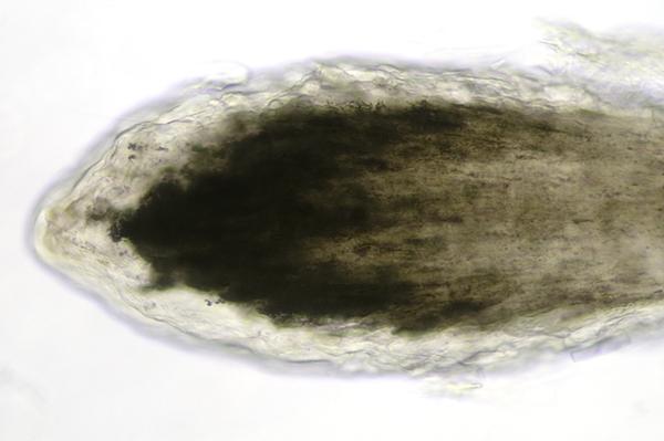 Hair Bulb Under Microscope Human Hair Root Under ...