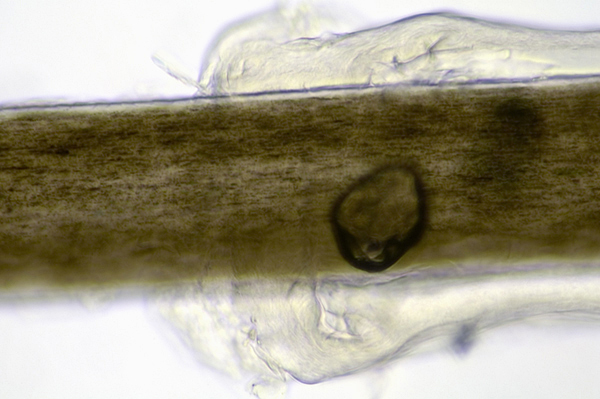 Root Hairs Microscope Brown Hair With Root Sheath