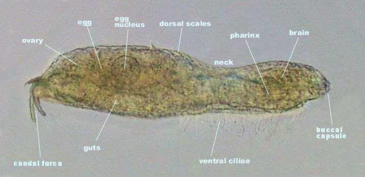 A Diagram Of Amoeba Under Microscope Acetabularia Under ...