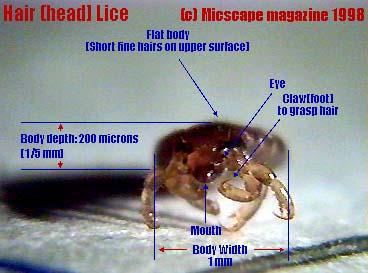 The Lice Program Eliminating Head Lice In 3 Weeks